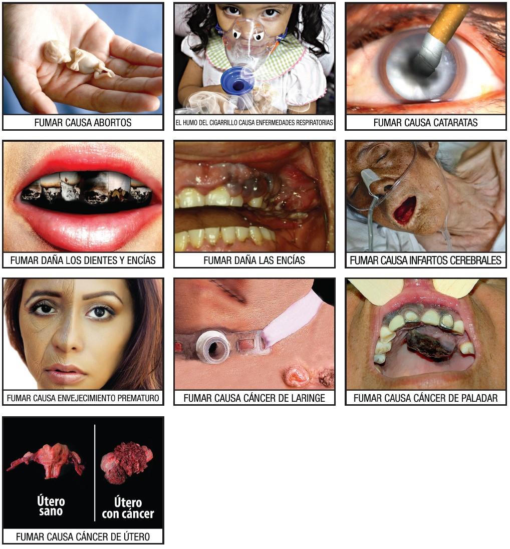 El modo extremo a de dejar fumar